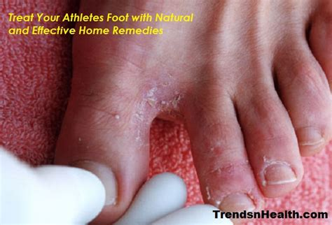 athletes foot home remedy 15 successful with disabilities around the world