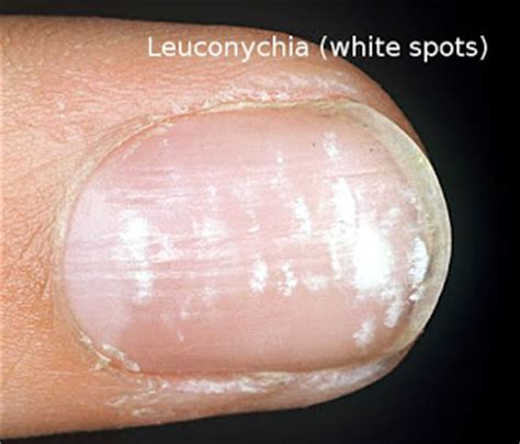 what are the white spots on nails awesome nail