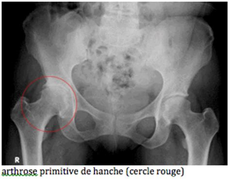 l arthrose de la hanche clinique drouot