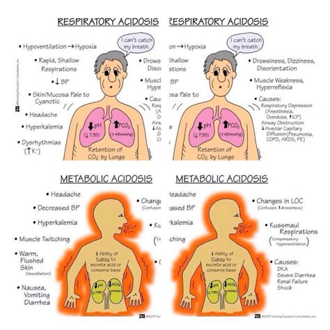 Metabolic Acidosisrespiratory Acidosis  Nursing. Cheap Car Hire Belfast Free Financial Planner. Accredited Pharmacy Technician Programs. Non Traditional Student Grants. Entrepreneurship Certificate Online. Degree In Environmental Science. Inventory Asset Management Levy Bank Account. Best Price Web Hosting Mpls Service Providers. Medical Technology Degree Salary