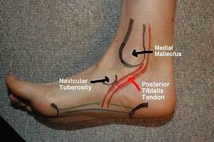 25 best foot anatomy images on Pinterest   Foot anatomy ...