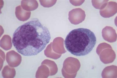 image gallery monocyte vs lymphocyte