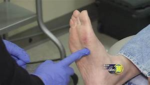 Foot Fat Transplant | abc30.com