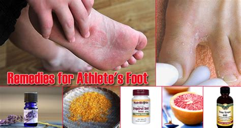 athletes foot home remedy 17 home remedies for athlete s foot